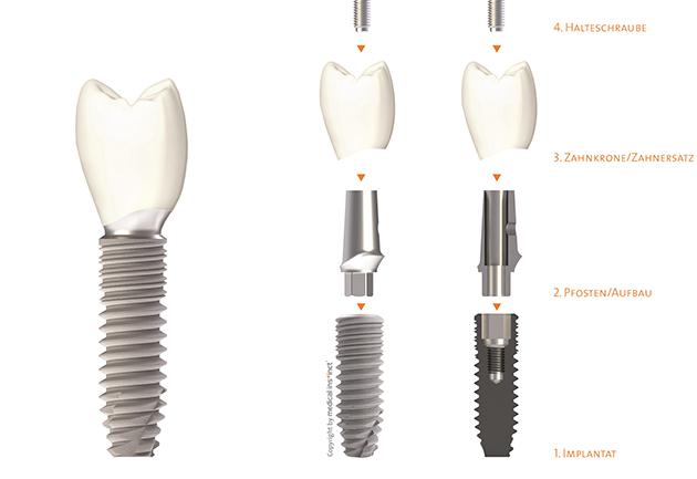 implantat-edelmund-einzelteile
